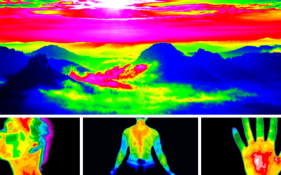 Medical Thermal Imaging in Shipston on Stour, Warwickshire